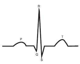 PQRST-комплекс нормальной электрокардиограммы